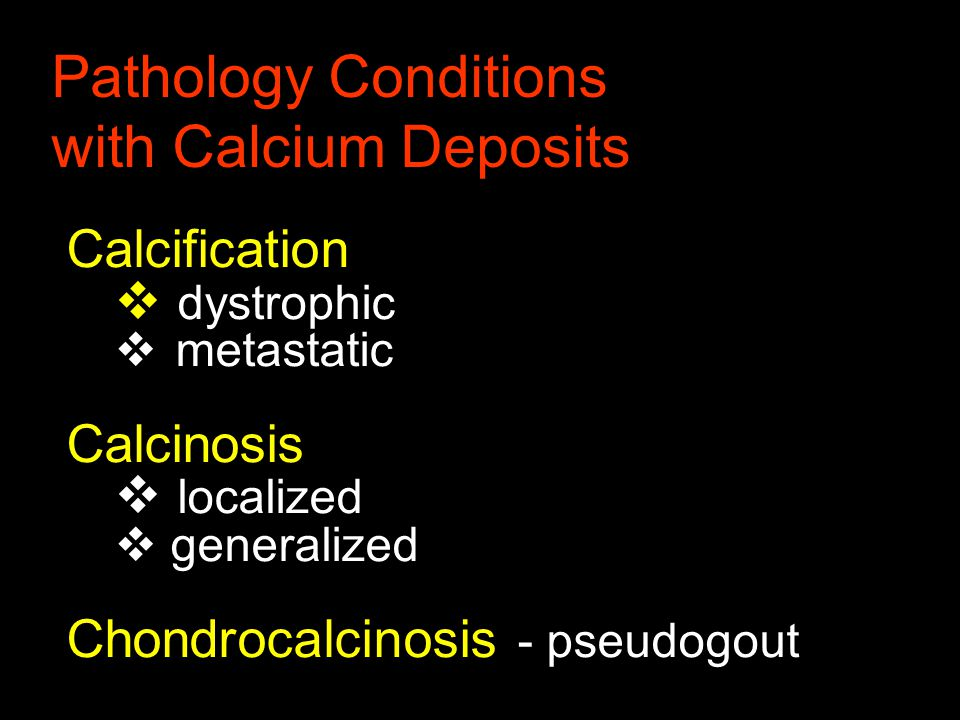 Calcification  dystrophic  metastatic Calcinosis  localized  generalized Chondrocalcinosis - pseudogout Pathology Conditions with Calcium Deposits