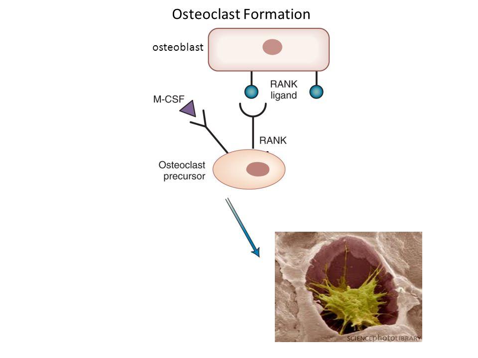 osteoblast Osteoclast Formation