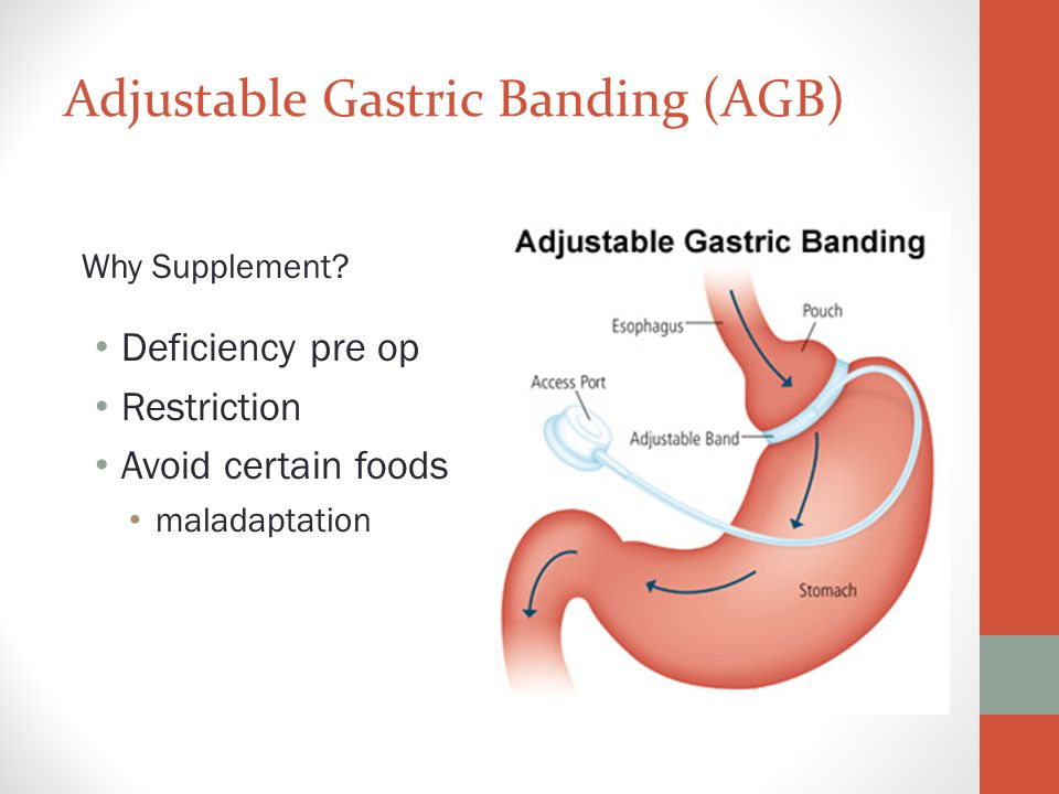 Stage 2: Full Liquids Gastric Band: Days 3-7 Bypass, Sleeve, DS: Days 3-14 Start vitamin and mineral regimen (Day 3) If your are having difficulty taking all supplements, start with the multivitamin (twice a day) and gradually add in all other supplements.
