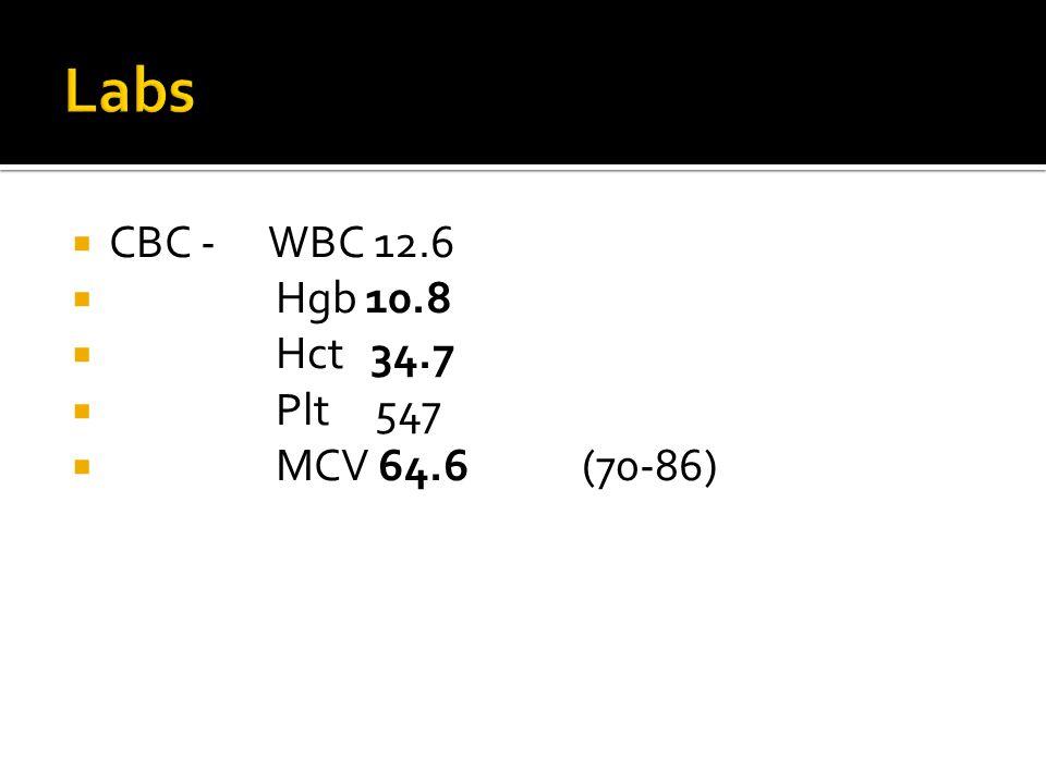  CBC -WBC 12.6  Hgb 10.8  Hct 34.7  Plt 547  MCV 64.6 (70-86)