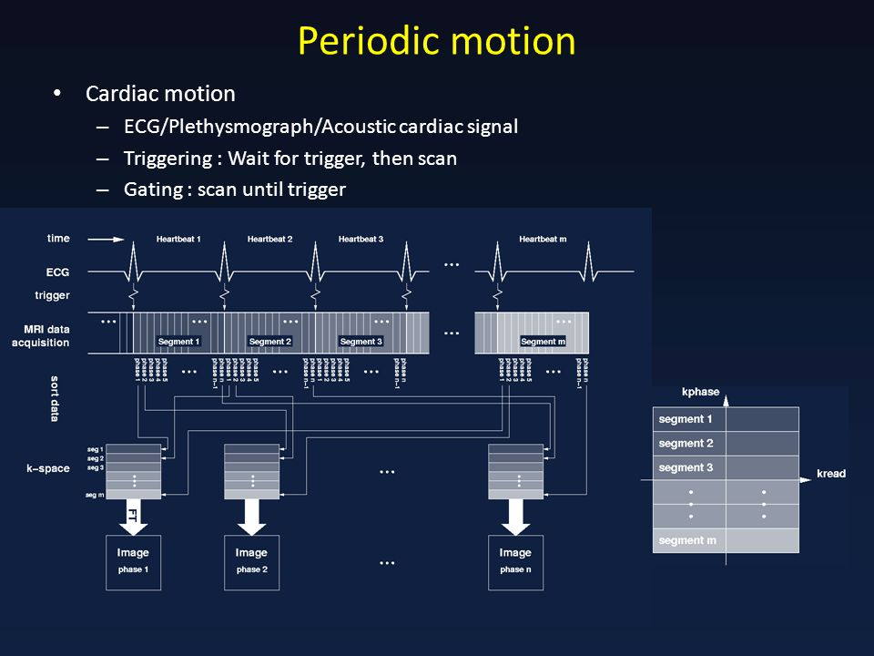Periodic motion Cardiac motion – ECG/Plethysmograph/Acoustic cardiac signal – Triggering : Wait for trigger, then scan – Gating : scan until trigger