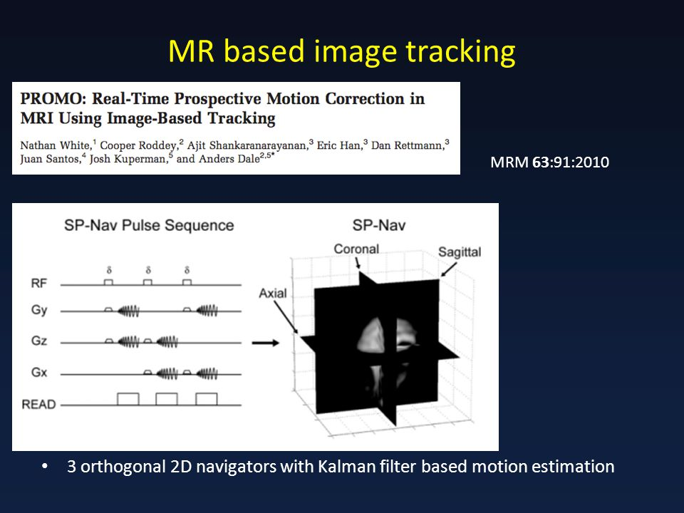 MR based image tracking 3 orthogonal 2D navigators with Kalman filter based motion estimation MRM 63:91:2010