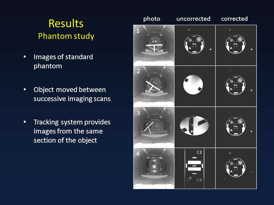 Results Phantom study photouncorrectedcorrected Images of standard phantom Object moved between successive imaging scans Tracking system provides images from the same section of the object 1 2 3 4