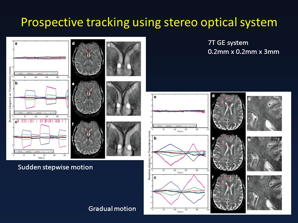 Prospective tracking using stereo optical system 7T GE system 0.2mm x 0.2mm x 3mm Sudden stepwise motion Gradual motion