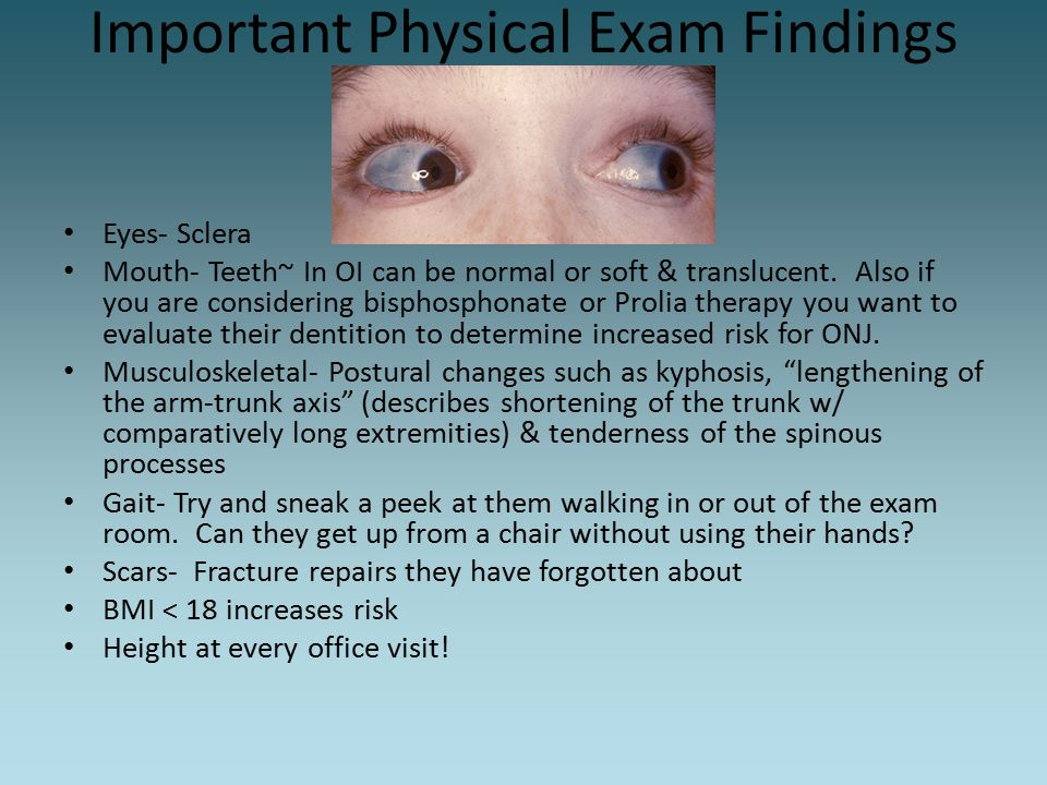 Important Physical Exam Findings Eyes- Sclera Mouth- Teeth~ In OI can be normal or soft & translucent. Also if you are considering bisphosphonate or P