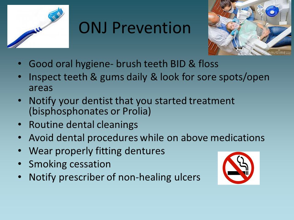 ONJ Prevention Good oral hygiene- brush teeth BID & floss Inspect teeth & gums daily & look for sore spots/open areas Notify your dentist that you sta