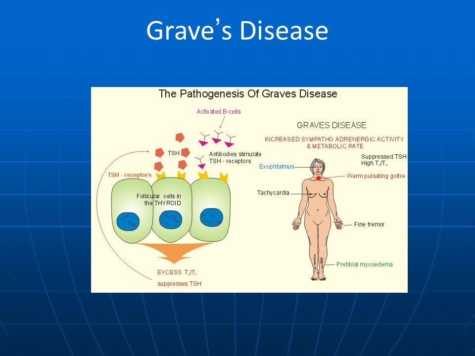 Grave's Disease