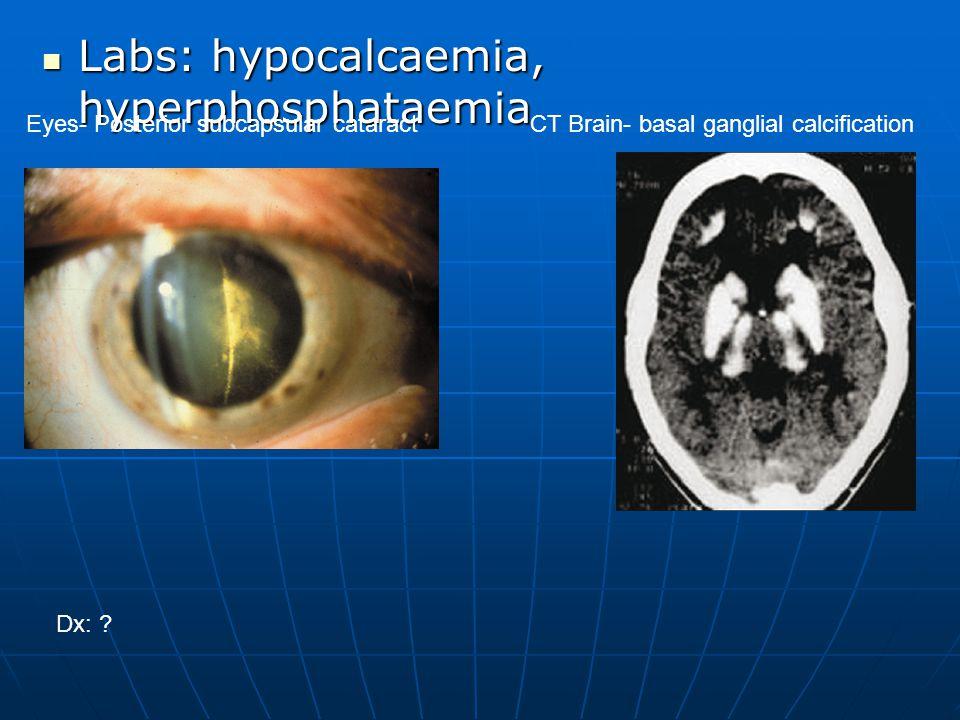 Labs: hypocalcaemia, hyperphosphataemia Labs: hypocalcaemia, hyperphosphataemia Eyes- Posterior subcapsular cataractCT Brain- basal ganglial calcifica
