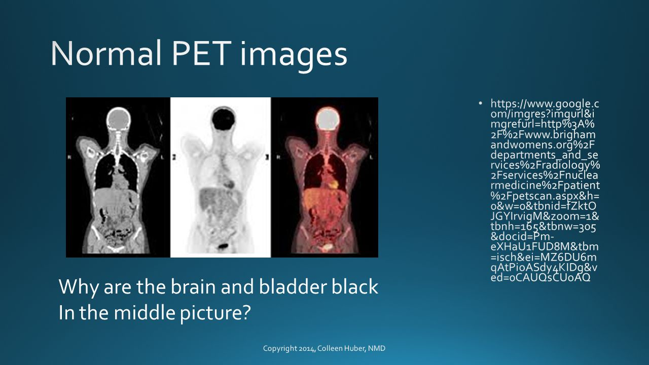 Why are the brain and bladder black In the middle picture
