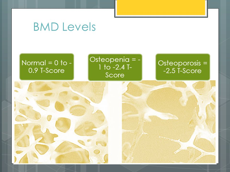BMD Levels Normal = 0 to - 0.9 T-Score Osteopenia = - 1 to -2.4 T- Score Osteoporosis = -2.5 T-Score