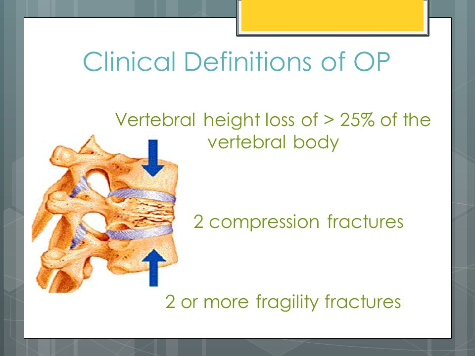 Clinical Definitions of OP Vertebral height loss of > 25% of the vertebral body 2 compression fractures 2 or more fragility fractures