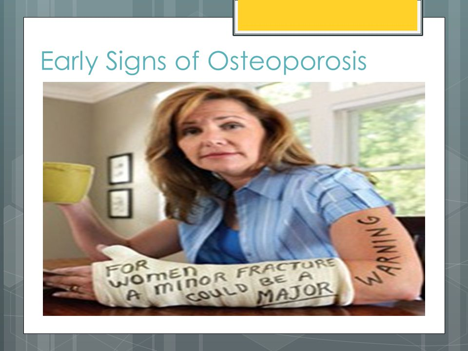 Early Signs of Osteoporosis