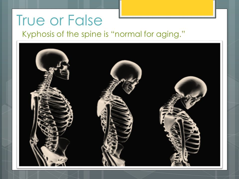 True or False Kyphosis of the spine is normal for aging.