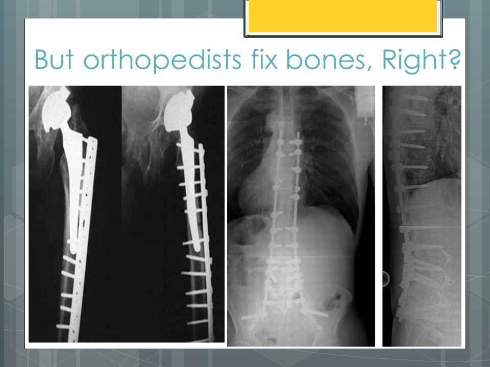 But orthopedists fix bones, Right?
