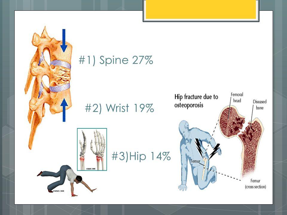 #1) Spine 27% #2) Wrist 19% #3)Hip 14%