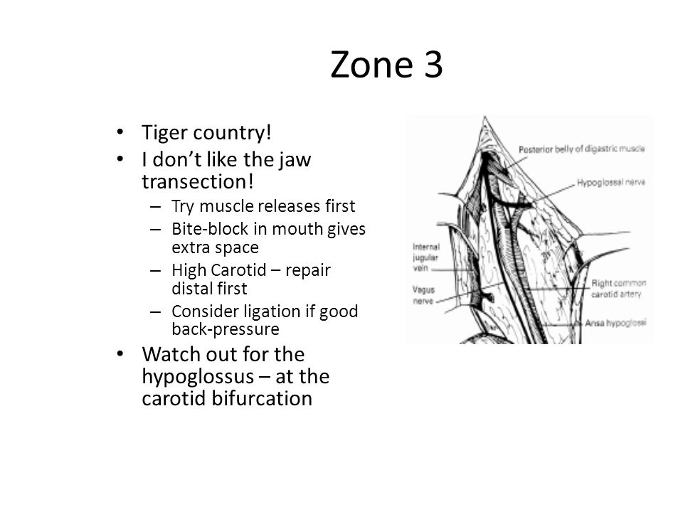 Zone 3 Tiger country! I don't like the jaw transection! – Try muscle releases first – Bite-block in mouth gives extra space – High Carotid – repair di