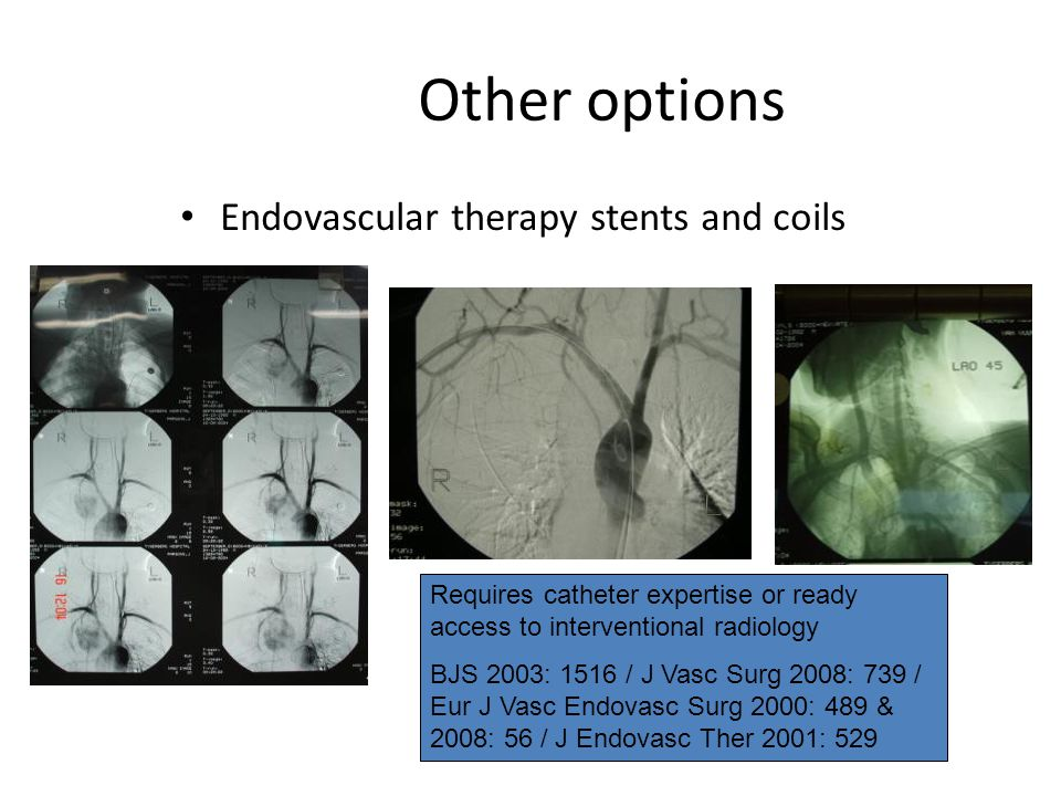 Other options Endovascular therapy stents and coils Requires catheter expertise or ready access to interventional radiology BJS 2003: 1516 / J Vasc Su