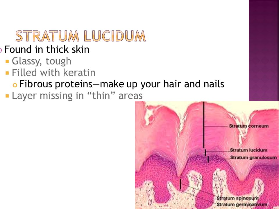 " Found in thick skin  Glassy, tough  Filled with keratin Fibrous proteins—make up your hair and nails  Layer missing in ""thin"" areas"