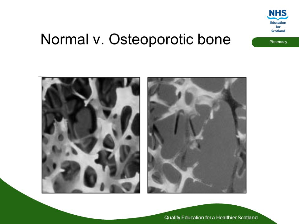 Quality Education for a Healthier Scotland Pharmacy Osteoporosis Incidence UK incidence is 3 million (probably much more) Causes 310,000 fractures per year- including 60,000 hip, 50,000 wrist and 120,000 vertebral One in 3 women and one in 12 men over 50 will sustain an osteoporotic fracture in their lifetime