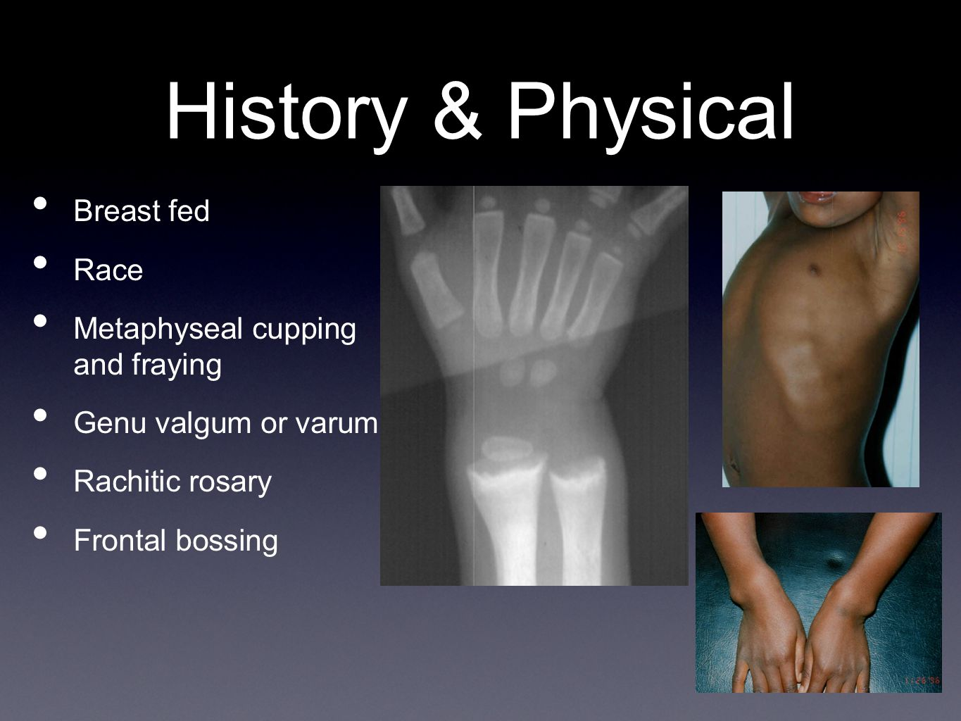 History & Physical Breast fed Race Metaphyseal cupping and fraying Genu valgum or varum Rachitic rosary Frontal bossing