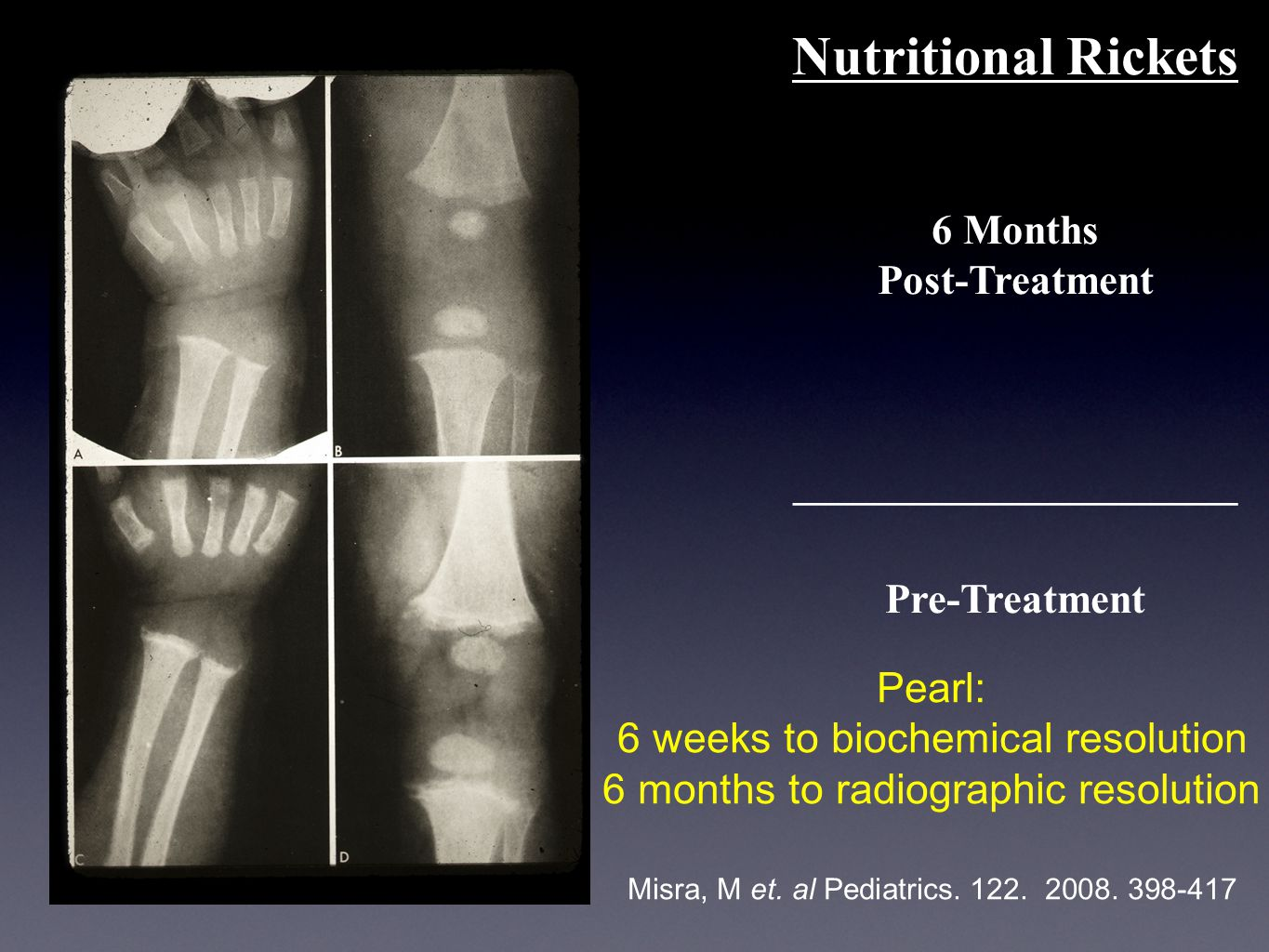 Nutritional Rickets 6 Months Post-Treatment _____________________ Pre-Treatment Misra, M et.