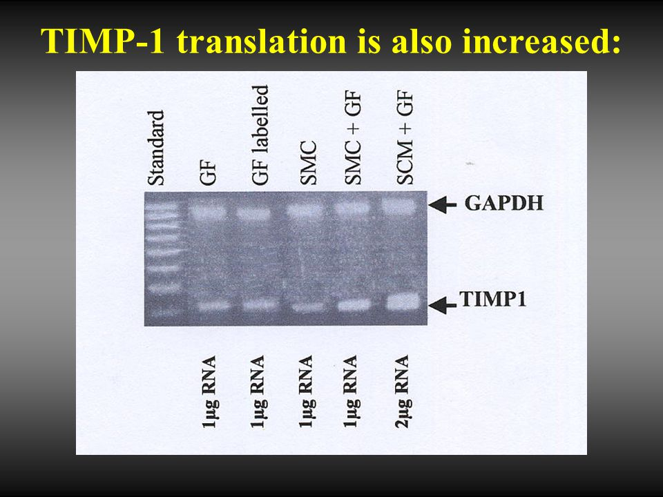 TIMP-1 translation is also increased: