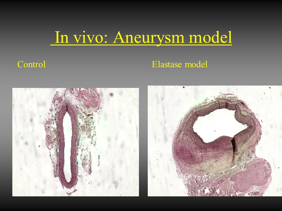 In vivo: Aneurysm model Control Elastase model