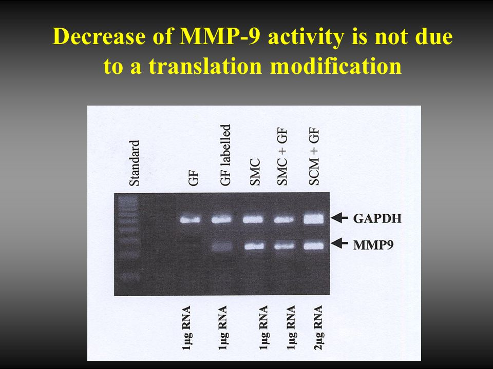 Decrease of MMP-9 activity is not due to a translation modification