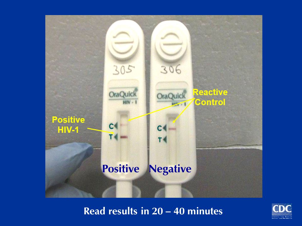 PositiveNegative Reactive Control Positive HIV-1 Read results in 20 – 40 minutes T T C C