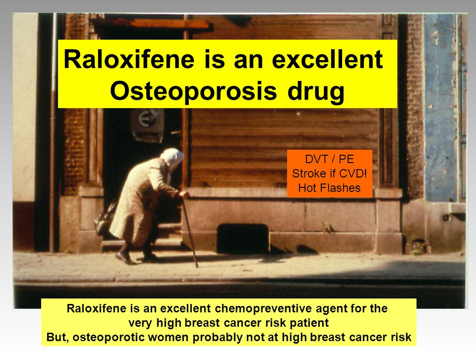 Raloxifene is an excellent Osteoporosis drug Raloxifene is an excellent chemopreventive agent for the very high breast cancer risk patient But, osteop