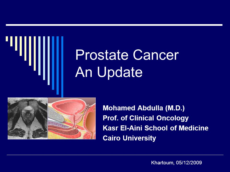 Prostate Cancer An Update Mohamed Abdulla (M.D.) Prof.