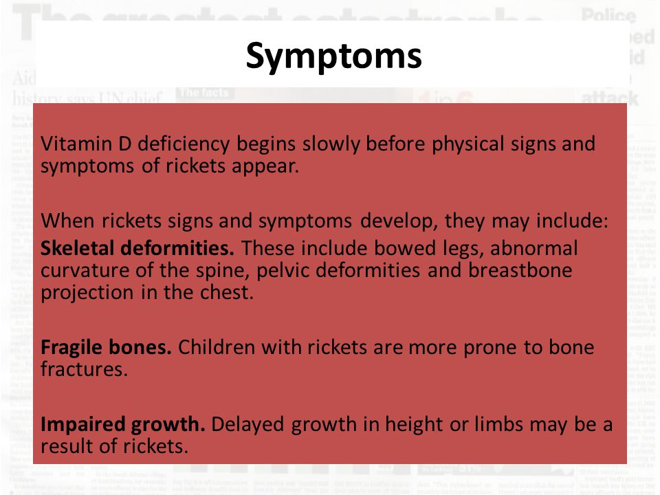 Symptoms Vitamin D deficiency begins slowly before physical signs and symptoms of rickets appear. When rickets signs and symptoms develop, they may in