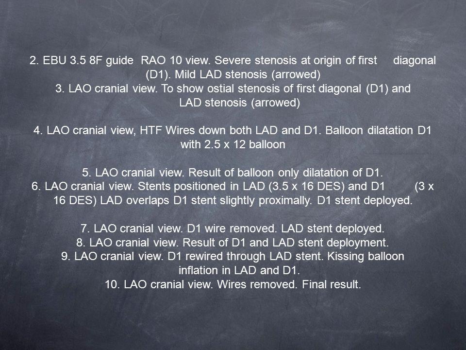 2.EBU 3.5 8F guide RAO 10 view. Severe stenosis at origin of first diagonal (D1).