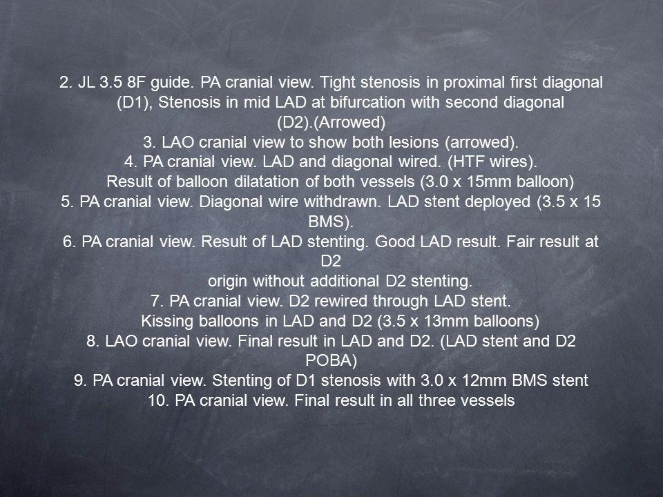 2.JL 3.5 8F guide. PA cranial view.