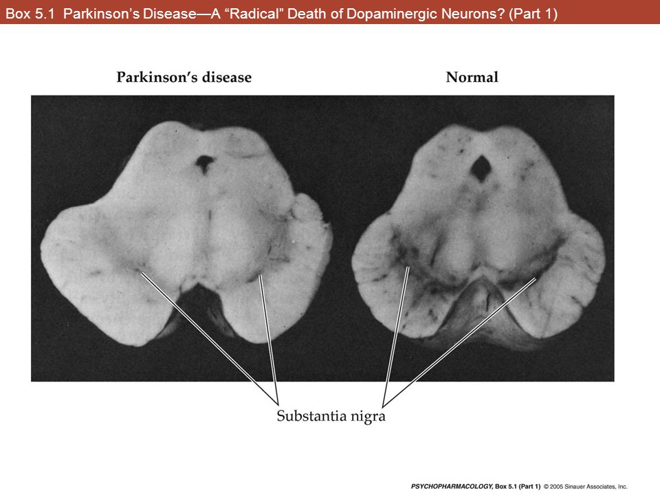 Box 5.1 Parkinson's Disease—A Radical Death of Dopaminergic Neurons (Part 1)