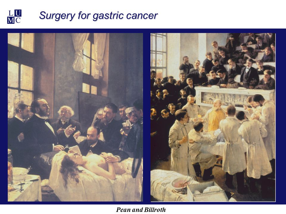 Pean and Billroth Surgery for gastric cancer