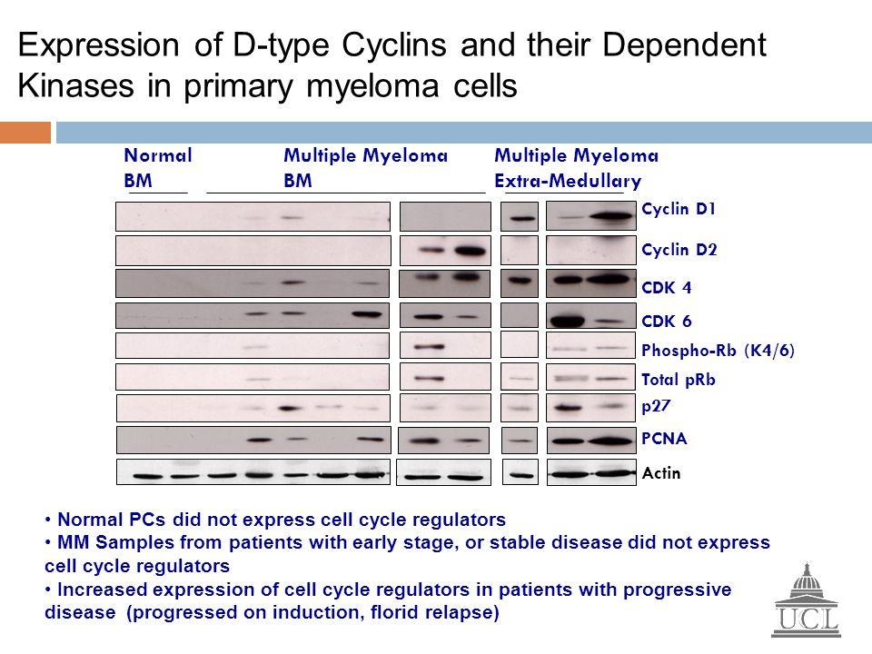 Phospho-Rb (K4/6) Cyclin D2 Cyclin D1 CDK 4 CDK 6 Total pRb Normal BM Multiple Myeloma Extra-Medullary p27 PCNA Multiple Myeloma BM Expression of D-ty