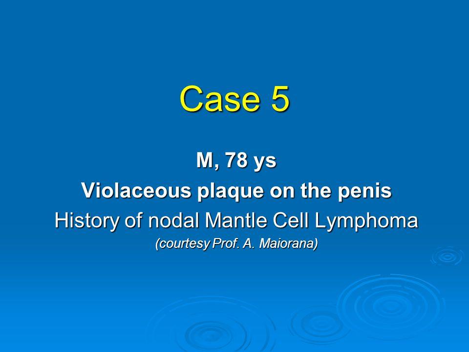 DIAGNOSIS  Cutaneous localization of Mantle Cell Lymphoma Mantle Cell Lymphoma  FISH: presence of t(11;14)(q13;q32)