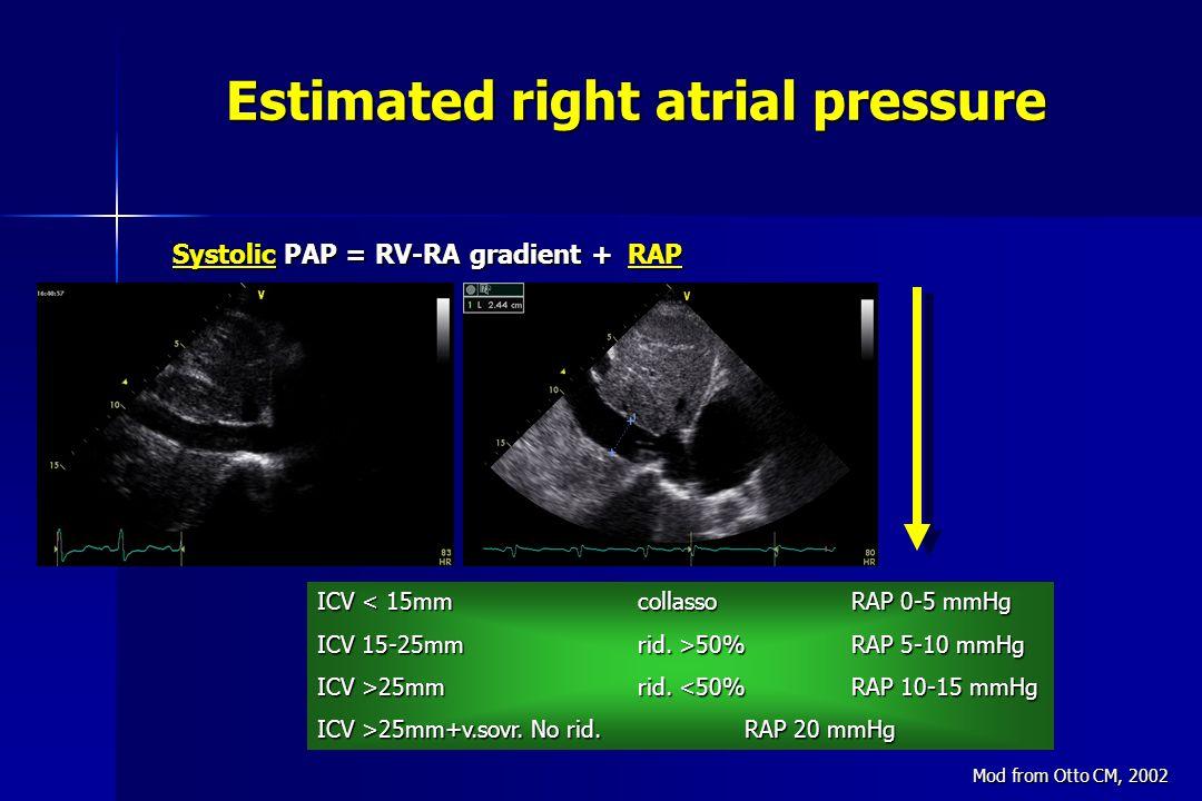 ICV < 15mmcollassoRAP 0-5 mmHg ICV 15-25mmrid.>50%RAP 5-10 mmHg ICV >25mmrid.