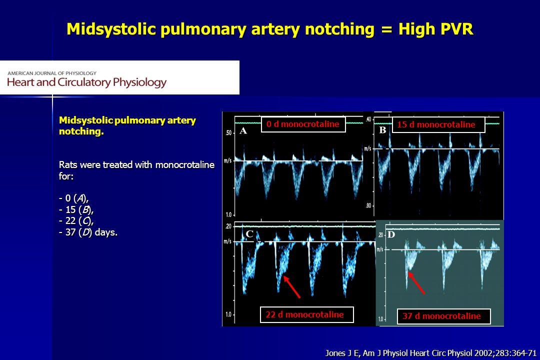 Midsystolic pulmonary artery notching = High PVR Jones J E, Am J Physiol Heart Circ Physiol 2002;283:364-71 Midsystolic pulmonary artery notching. Rat