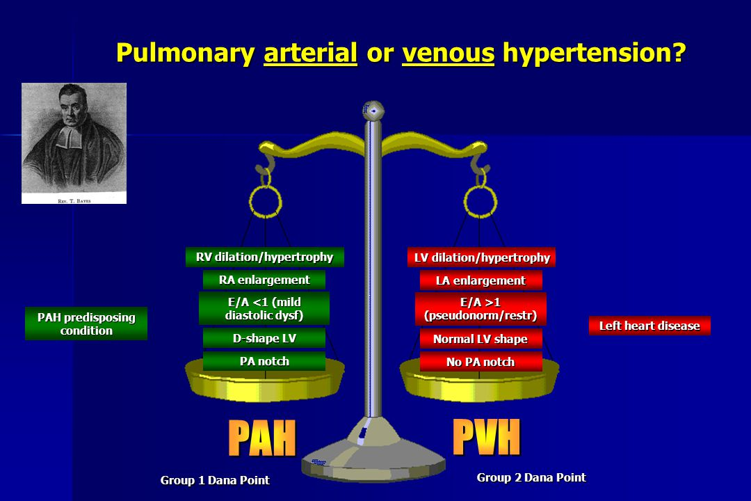 LV dilation/hypertrophy LA enlargement E/A >1 (pseudonorm/restr) Normal LV shape No PA notch RV dilation/hypertrophy RA enlargement E/A <1 (mild diast