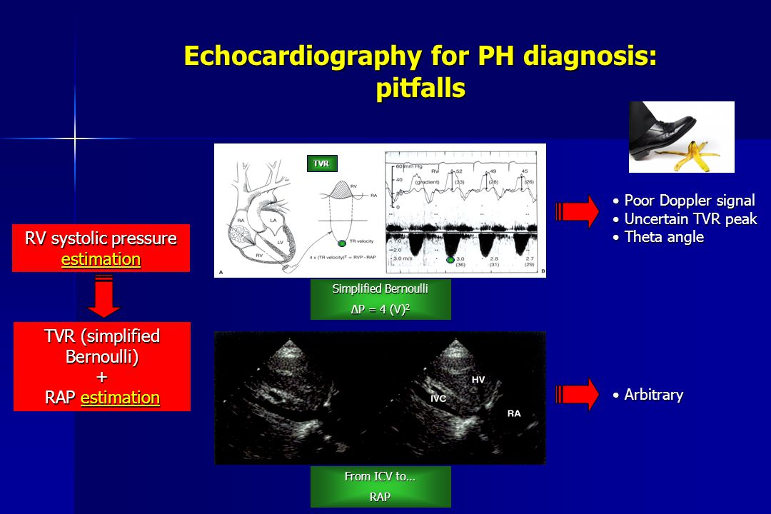 Echocardiography for PH diagnosis: pitfalls RV systolic pressure estimation TVR (simplified Bernoulli) + RAP estimation TVR Simplified Bernoulli ΔP = 4 (V) 2 From ICV to… RAP Poor Doppler signal Poor Doppler signal Uncertain TVR peak Uncertain TVR peak Theta angle Theta angle Arbitrary Arbitrary