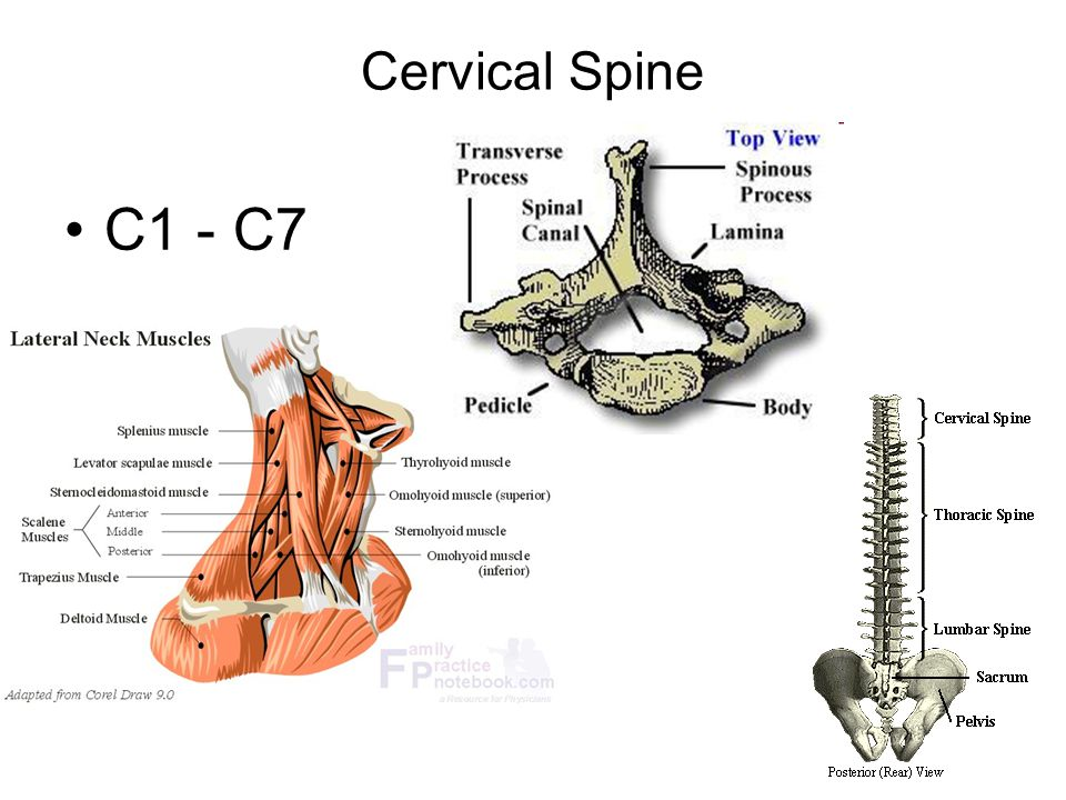 Spurling Test Same positioning as cervical compression test Instead of linear axial load through top of head, clinician extends and laterally rotates neck with compression to impinge on nerve root/s Positive if pain and/or neuro symptoms reproduced in cervical spine and/or upper extremity