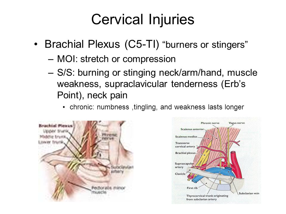 "Cervical Injuries Brachial Plexus (C5-TI) ""burners or stingers"" –MOI: stretch or compression –S/S: burning or stinging neck/arm/hand, muscle weakness,"