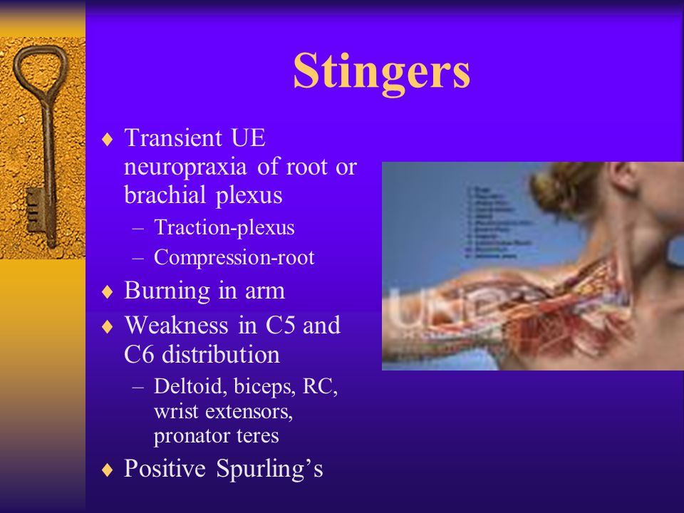 Stingers  Transient UE neuropraxia of root or brachial plexus –Traction-plexus –Compression-root  Burning in arm  Weakness in C5 and C6 distribution –Deltoid, biceps, RC, wrist extensors, pronator teres  Positive Spurling's