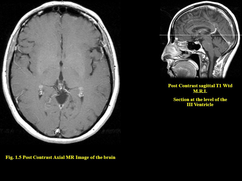 Fig. 1.5 Post Contrast Axial MR Image of the brain Post Contrast sagittal T1 Wtd M.R.I. Section at the level of the III Ventricle
