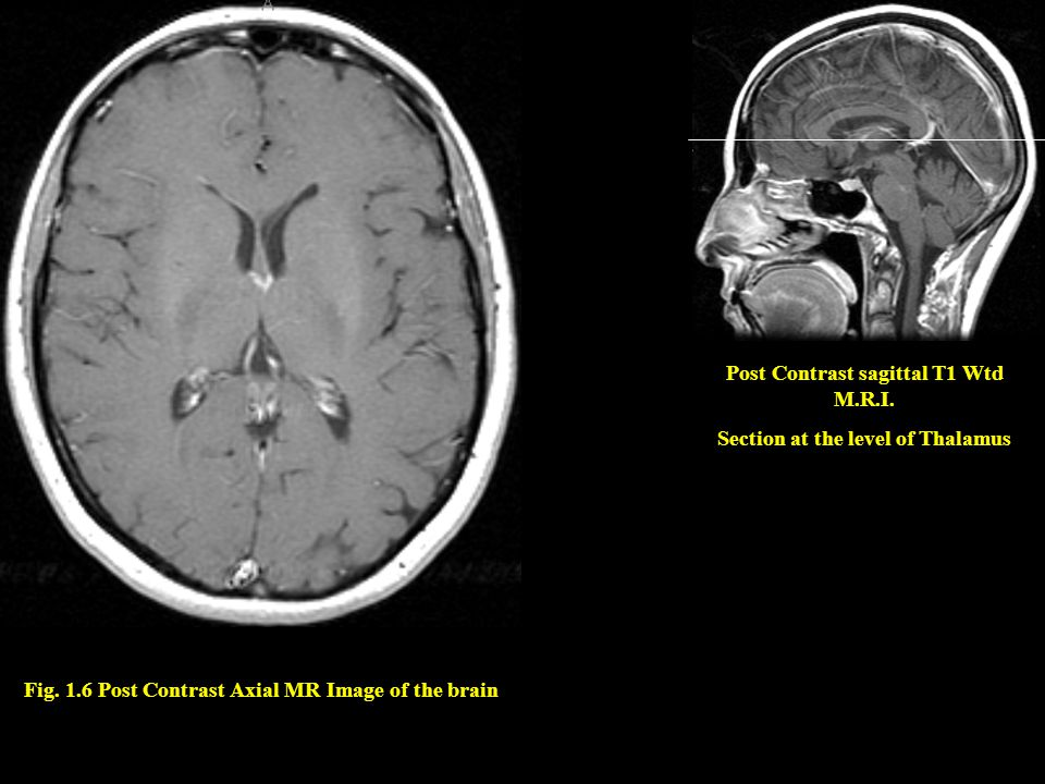 Fig. 1.6 Post Contrast Axial MR Image of the brain Post Contrast sagittal T1 Wtd M.R.I. Section at the level of Thalamus