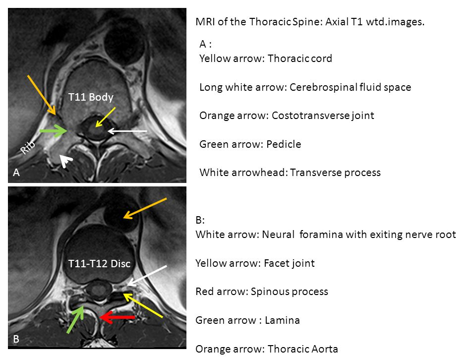 MRI of the Thoracic Spine: Axial T1 wtd.images. Rib B T11 Body A T11-T12 Disc A : Yellow arrow: Thoracic cord Long white arrow: Cerebrospinal fluid sp