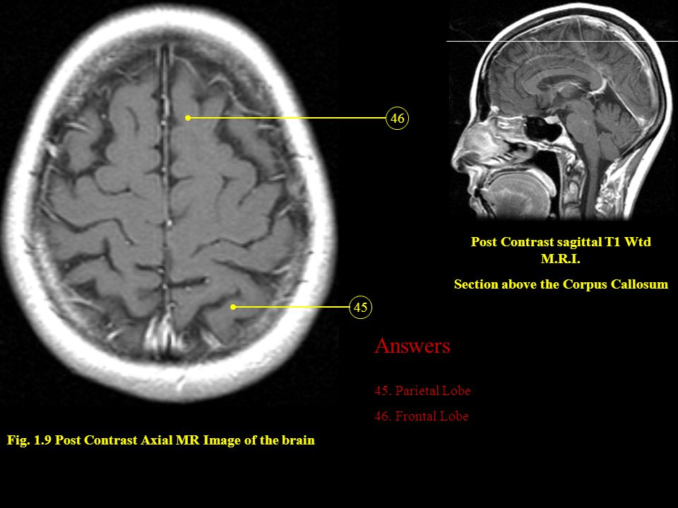 Fig. 1.9 Post Contrast Axial MR Image of the brain 45 46 Post Contrast sagittal T1 Wtd M.R.I. Section above the Corpus Callosum Answers 45. Parietal L