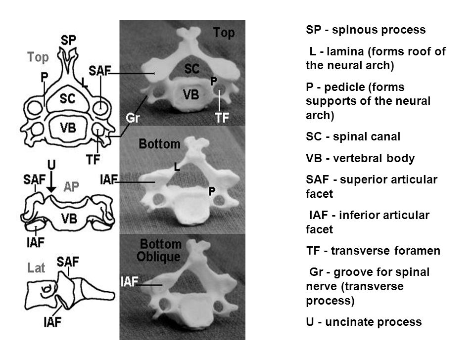 SP - spinous process L - lamina (forms roof of the neural arch) P - pedicle (forms supports of the neural arch) SC - spinal canal VB - vertebral body SAF - superior articular facet IAF - inferior articular facet TF - transverse foramen Gr - groove for spinal nerve (transverse process) U - uncinate process